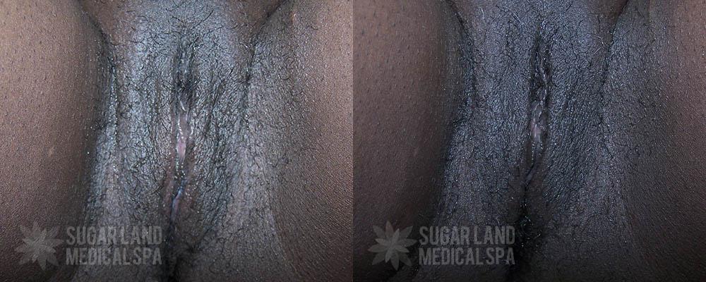 dr-evans-houston-non-invasive-tightening-patient-3