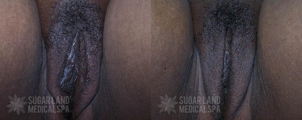 dr-evans-houston-non-invasive-tightening-patient-5