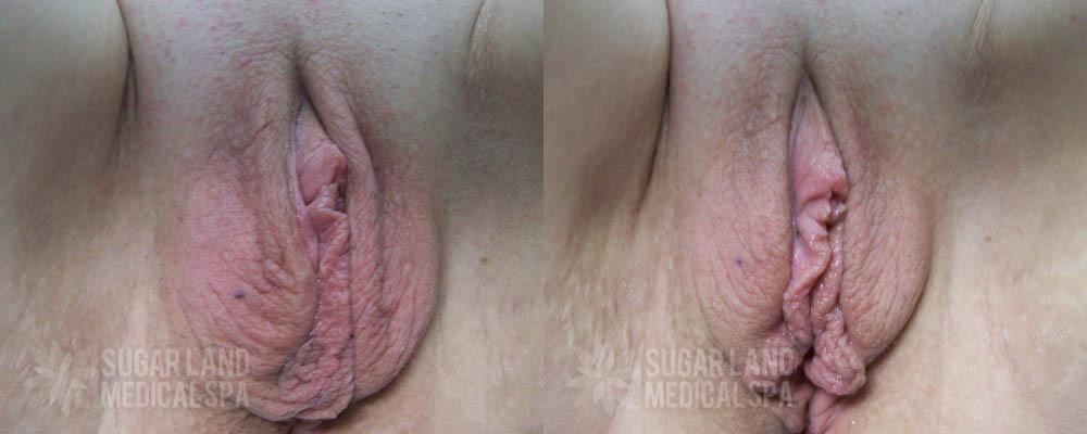 dr-evans-houston-non-invasive-tightening-patient-7