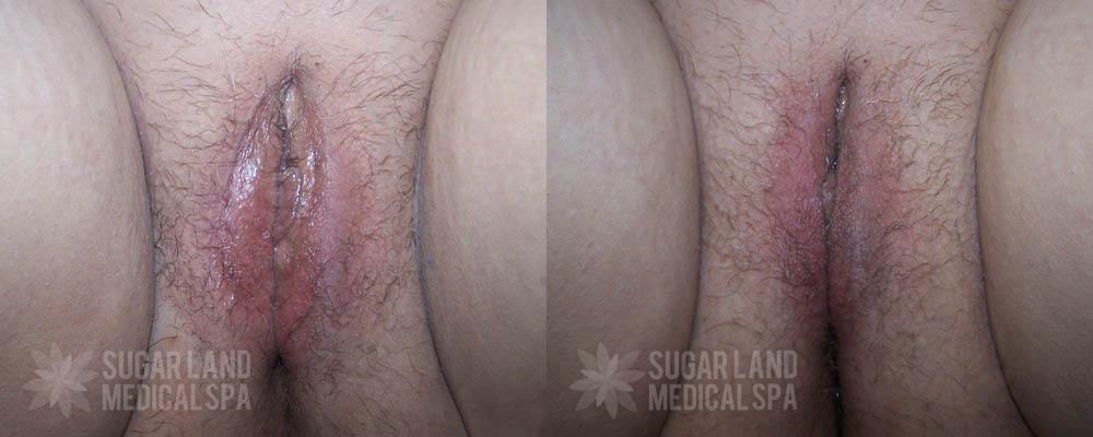 dr-evans-houston-non-invasive-tightening-patient-8